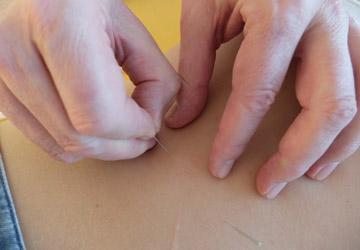 TCM /Akupunktur